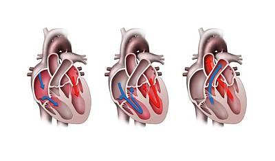 Heart Pumping Poster