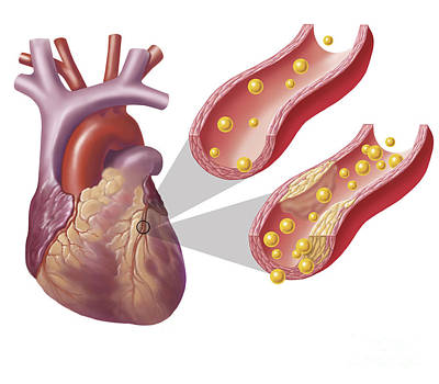Heart With Arteries Showing Cholesterol Poster by TriFocal Communications