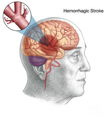 Hemorrhagic Stroke Poster by Spencer Sutton
