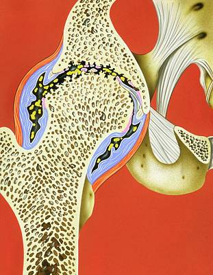 Hip Joint Cartilage Loss Poster by John Bavosi