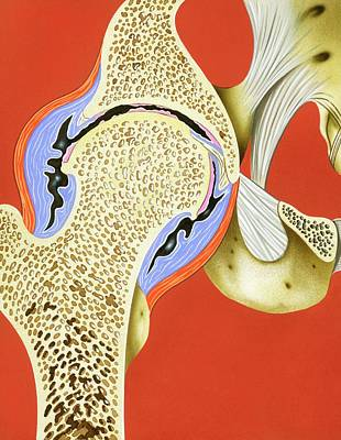 Hip Joint Inflammation Poster by John Bavosi