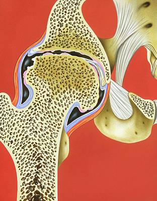 Hip Joint Pannus Formation Poster by John Bavosi