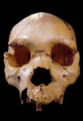 Homo Heidelbergensis Skull (cranium 5) Poster by Javier Trueba/msf