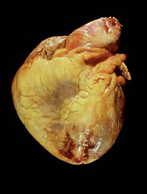 Human Heart After Heart Attack Poster