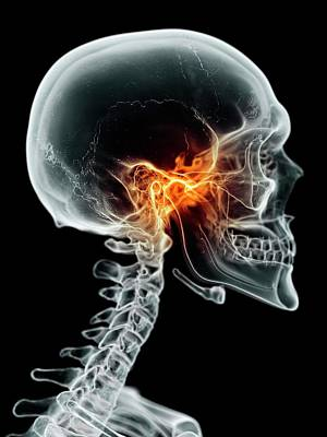 Human Jaw Joint Poster by Sciepro