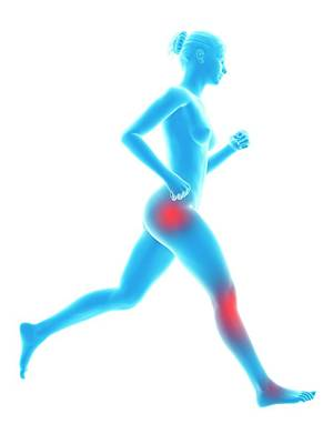 Human Joint Of Runner Poster