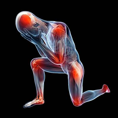 Human Joint Pain Poster