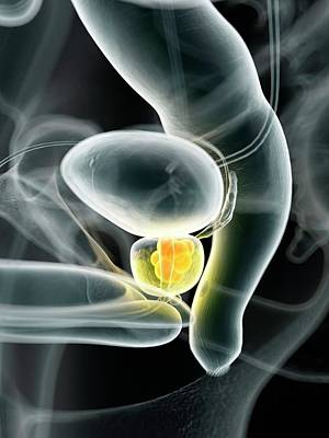 Human Prostate Cancer Poster