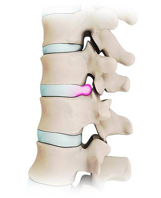 Human Spine With Slipped Disc Poster