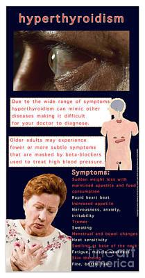 Hyperthroidism Poster by Cmsp