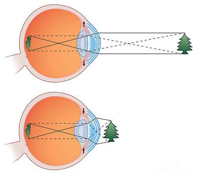 Illustration Of Vision Poster by Annaick Kermoal