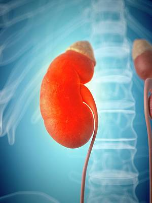 Inflamed Kidney Poster by Sciepro