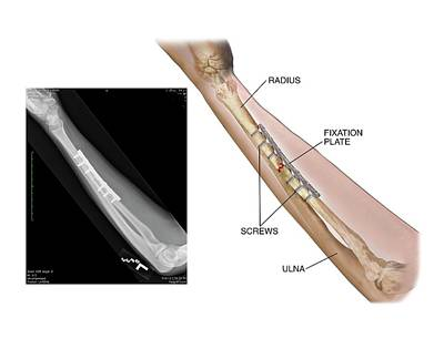 Internal Fixation Of Fractured Radius Poster by John T. Alesi
