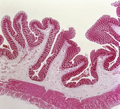 Intestinal Villi Poster by Overseas/collection Cnri/spl