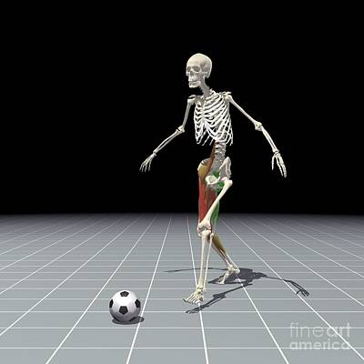Kicking A Ball Poster by Medical Images, Universal Images Group