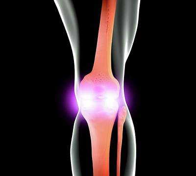 Knee Joint Poster