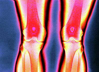 Knees Poster by Larry Berman
