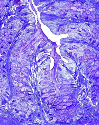 Large Bowel Glands Poster by Microscape