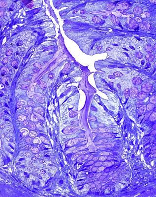 Large Bowel Glands Poster