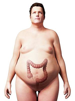 Large Intestine Of Overweight Man Poster