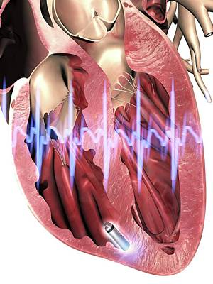 Leadless Pacemaker In Anterior Heart Poster by Alfred Pasieka