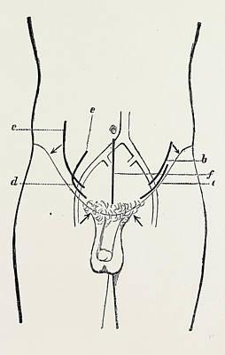 Ligature Of External Iliac, Medical Equipment Poster