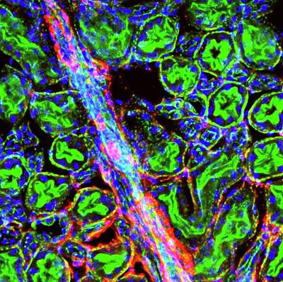 Liver Arteriole Poster by R. Bick, B. Poindexter, Ut Medical School