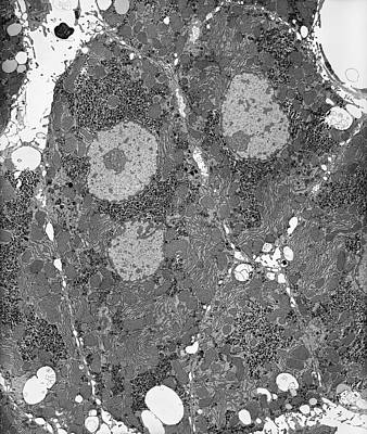 Liver Tissue Hepatocytes Poster by Microscape