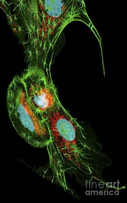 Lung Cells, Fluorescent Micrograph Poster by Heiti Paves