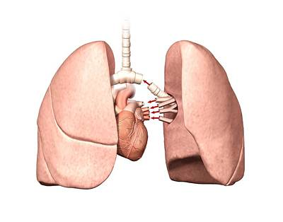Lung Operation Poster