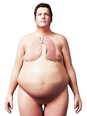 Lungs Of An Overweight Man Poster