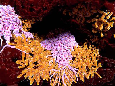 Macrophages In Tuberculosis Poster by Juan Gaertner