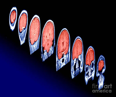 Magnetic Resonance Imaging Mri Poster by Erich Schrempp