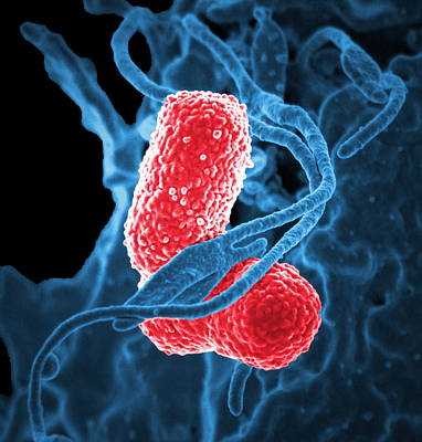Mdr Pathogen, Klebsiella Pneumoniae, Sem Poster by Science Source