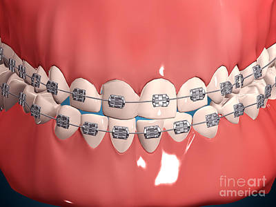 Medical Illustration Of Human Mouth Poster by Stocktrek Images