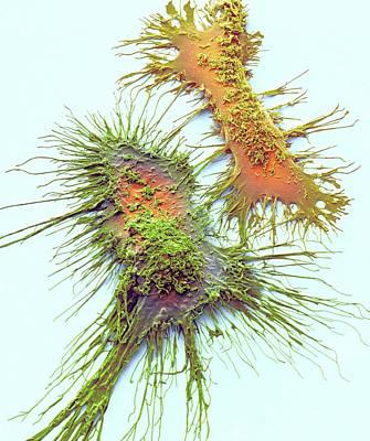 Microglia Poster by Steve Gschmeissner