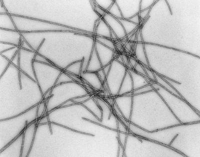 Microtubules Poster