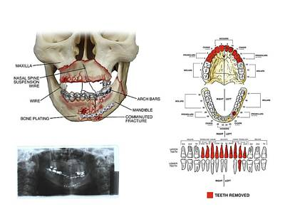 Mouth And Facial Fractures Surgery Poster by John T. Alesi