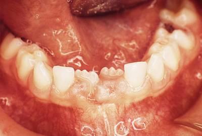 New Teeth Erupting Poster