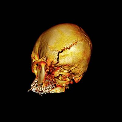 Occipital Skull Fracture Poster by John T. Alesi