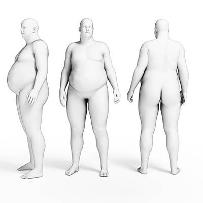 Overweight Body Poster
