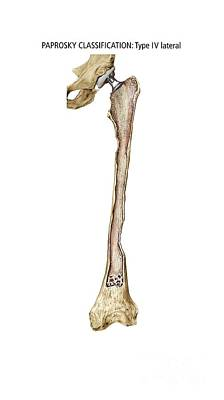 Paprosky Femur Defect, Type Iv Lateral Poster by D & L Graphics