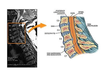 Protruding Disc In The Cervical Spine Poster