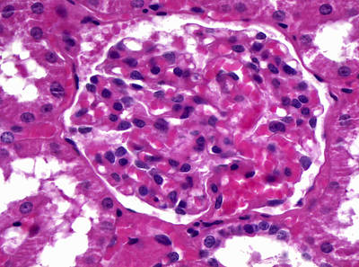 Renal Corpuscle, Lm Poster
