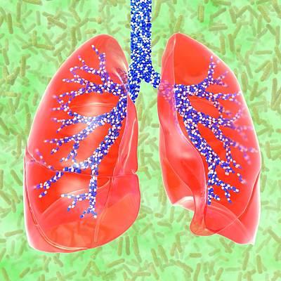 Respiratory Medicine Poster