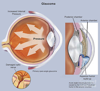 Retina Of Eye With Glaucoma Poster