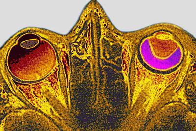 Retinal Detachment, Mri Poster by James Cavallini