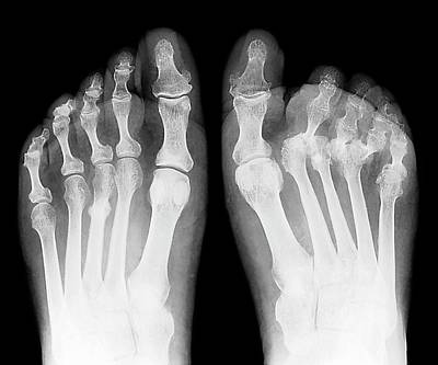 Rheumatoid Arthritis Of The Feet Poster by Zephyr