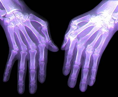 Rheumatoid Arthritis Of The Hands Poster by Zephyr