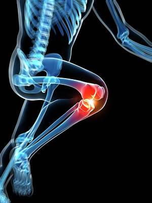 Runner's Knee Joint Poster by Sebastian Kaulitzki